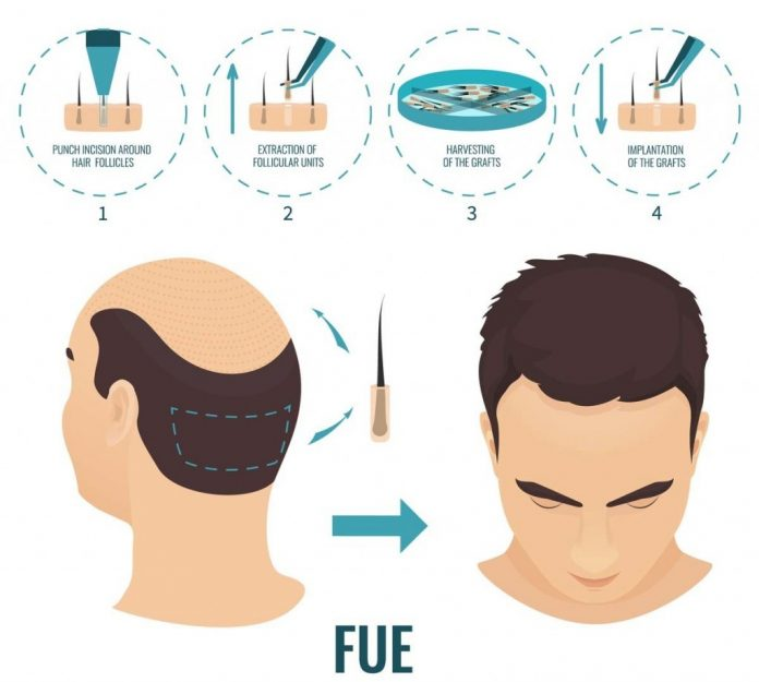 Are FUE Results on Internet Real?