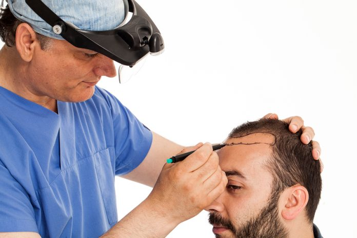How to Select Hair Transplant Doctor for Operation?