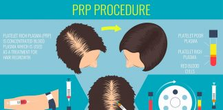 What Is PRP Hair?