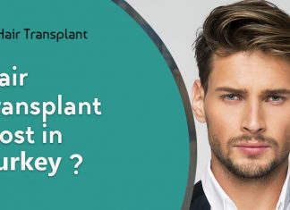 Hair transplant cost Turkey
