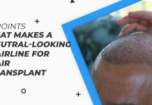 5 points that makes a neutral-looking hairline for hair transplant