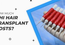 how much dhi hair transplant costs